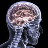 De Röntgenstraal van het skelet - Hersenen 1 Stock Foto's