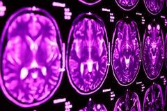 De résonance magnétique du cerveau, bleu Photos libres de droits