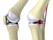 De scharnierverbinding van de knie en van het titanium Stock Fotografie