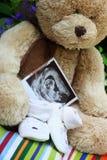 De schoenen en de teddybeer en de babyultrasone klank van de baby Royalty-vrije Stock Foto