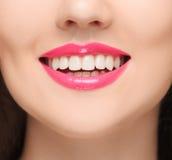 De sinnliga röda kanterna, öppen mun, vita tänder Arkivbilder