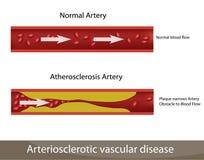 De slagader van de atherosclerose Stock Afbeelding