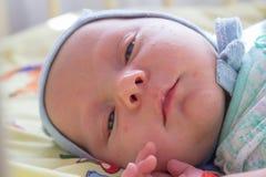 De slaperige baby ligt, pasgeboren zuigeling met acne op gezicht royalty-vrije stock foto