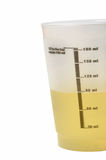 De Steekproef van de urine Stock Afbeeldingen
