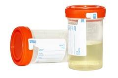 De steekproef van de urine en lege inzamelingsfles Stock Afbeeldingen