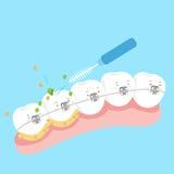 De steun van de tandslijtage met borstel stock illustratie