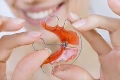De steunen van de meisjesholding voor tanden royalty-vrije stock afbeelding