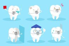 De steunen van de tandslijtage vector illustratie