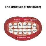 De structuur van de steunen orthodontie Infographics Vectorillustratie op geïsoleerde achtergrond Stock Foto's
