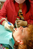De tand geduldige krijgende mond suctioned Stock Fotografie
