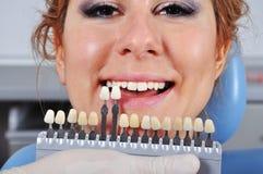 De tand van de schaduwbepaling Stock Afbeelding