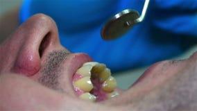 De Tand van tandartschecking patient stock videobeelden