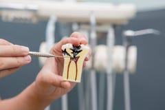 De tandarts toont tand het borstelen aan Stock Foto's