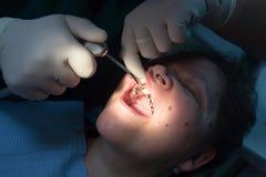 De tandarts werkt met de cliënt in de kliniek stock foto
