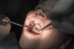 De tandarts werkt met de cliënt in de kliniek stock afbeelding