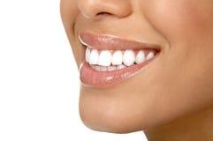 De tanden van de vrouw Stock Afbeeldingen