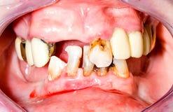 De tanden van Unhealhty Stock Afbeelding
