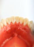 De tandencontrole van de tandarts, reeks verwante foto's Stock Afbeelding