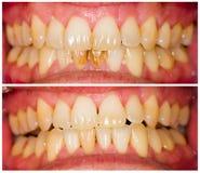 De tandtechnici werken Stock Foto