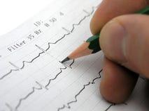 De testresultaten van het electrocardiogram Stock Foto