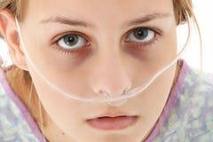 De Tiener van het ziekenhuis Stock Fotografie
