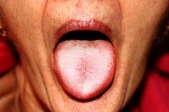 De tong is in een witte inval Candidiasis in de tong stock foto