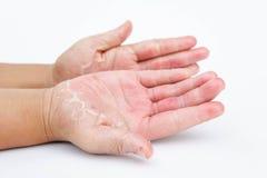 De torra händerna, peel, kontaktdermatit, svamp- infektioner, hud inf royaltyfri fotografi