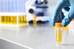 De urinesteekproef van de laboratorium hulpholding in container bij lijst, close-up royalty-vrije stock afbeeldingen