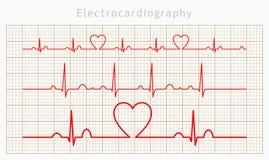 De vector geplaatste grafieken van het Hartcardiogram Royalty-vrije Stock Afbeelding