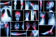 De veelvoudige ziekte van de inzamelingsröntgenstraal stock foto