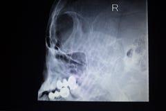 De verwonding van de het aftastenneus van Traumatology van de röntgenstraalorthopedie ademhaling Stock Afbeelding