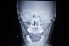 De verwonding van de het aftastenneus van Traumatology van de röntgenstraalorthopedie ademhaling Stock Foto