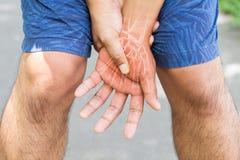 De verwonding van handbeenderen Stock Fotografie