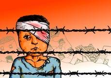 De Vluchteling van het oorlogsslachtoffer Stock Foto's