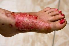De voeten van de brandwond Royalty-vrije Stock Afbeeldingen