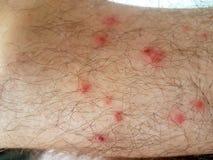 De voeten van de het insectmens van de pukkelsvlo royalty-vrije stock afbeeldingen