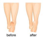 De voeten van vrouwen, gebarsten hielen en gezond stock illustratie