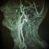 De volledige occlusie van de halsslagader van de Mrislagader stock foto's