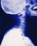 De volledige (x-ray) röntgenstraal van de halsschedel stock foto