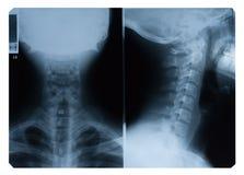 De voorzijde en de kant van de Röntgenstraal van de hals Stock Afbeeldingen