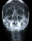 De voorzijde van de röntgenstraal/van het Gezicht Stock Foto