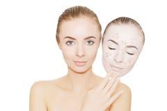 De vrouw haalt masker met acne en pukkels, grijze achtergrond weg stock afbeelding