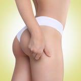 De vrouw knijpt haar dij om te controleren cellulite Stock Afbeelding
