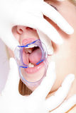 De vrouw krijgt bleken van tandarts stock foto's