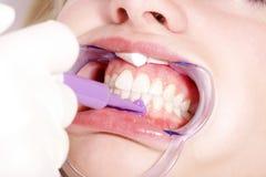 De vrouw krijgt bleken van tandarts royalty-vrije stock fotografie