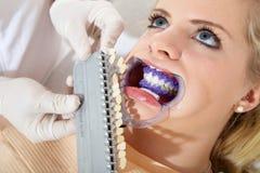 De vrouw krijgt bleken van tandarts stock foto