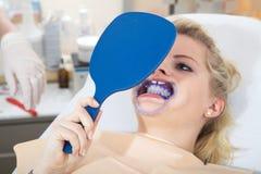De vrouw krijgt bleken van tandarts stock afbeelding