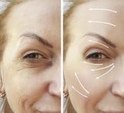 De vrouw rimpelt before and after collageenspanning hydraterend de procedureeffect regeneratie royalty-vrije stock foto's