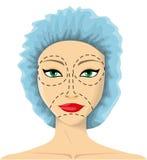 De vrouw treft aan plastische chirurgie voorbereidingen Stock Foto