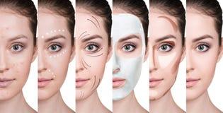 De vrouw verbetert stap voor stap haar huidvoorwaarde Stock Afbeelding